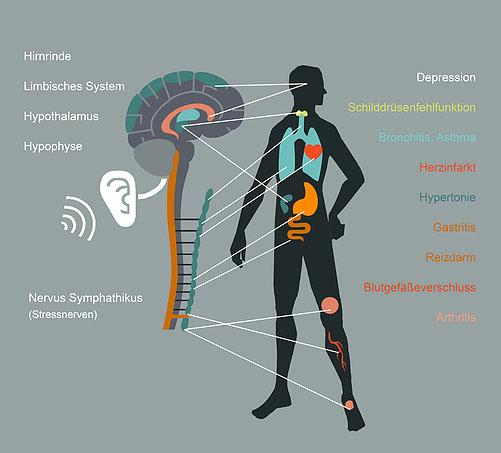 Lärmbelästigung birgt ein Gesundheitsrisiko